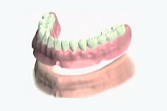 総入れ歯の場合